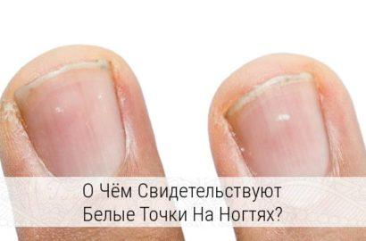 что означают белые пятна на ногтях рук с точки зрения медиков